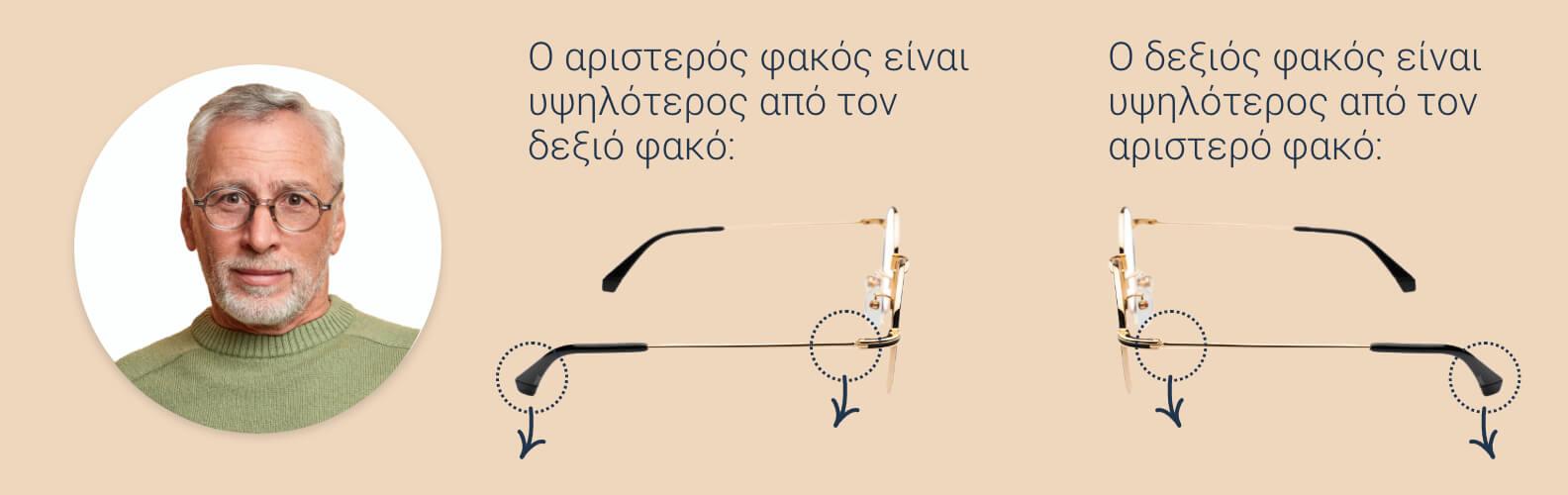 Πώς να χαλαρώσετε τον σκελετό και τα μαξιλάρια μύτης των γυαλιών